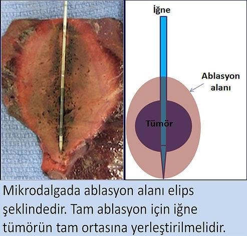 Mikrodalgada ablasyon alanı elips şeklindedir. Tam ablasyon için iğne tümörün tam ortasına yerleştirilmelidir.