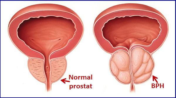 Normal ve büyümüş prostat.