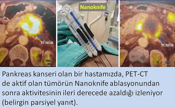 Nanoknife ablasyon pankreas kanserinde umut veren bir tedavi yöntemidir.
