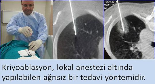 Kriyoablasyon lokal anestezi altında yapılabilen ağrısız bir işlemdir