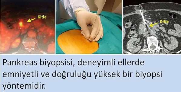 Ultrason ve tomografi rehberliğinde pankreas kesici iğne biyopsisi