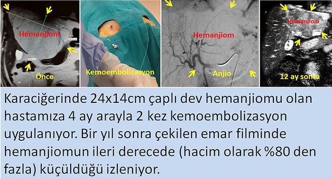 Karaciğer hemanjiomlarında kemoembolizasyon (TAKE) tedavisi.