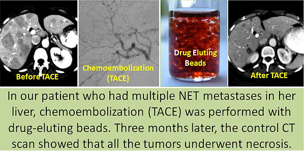 Chemoembolization in the liver metastases of neuroendocrine tumor.