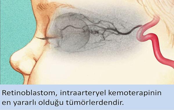 Retinoblastom, intraarteryel kemoterapinin en yararlı olduğu tümörlerdendir.