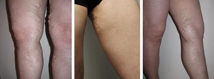 Genital-vajinal varisler, pelvik venöz yetmezliğe bağlıdır. En tipik belirti, adet kanaması sırasında artan bacak ağrısıdır.