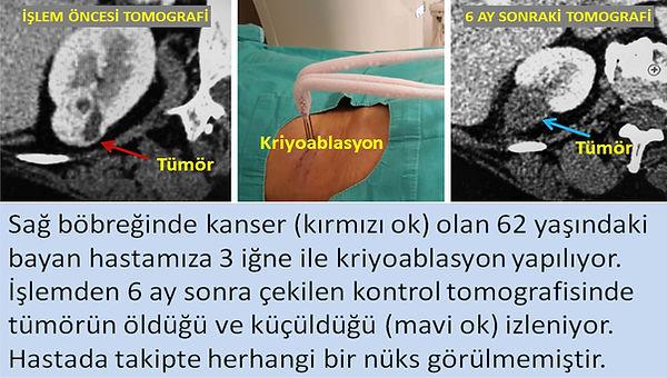 Sol böbrekteki 3 cm çaplı kanserin kriyoablasyondan sonra tamamen tahrip olduğu izleniyor.