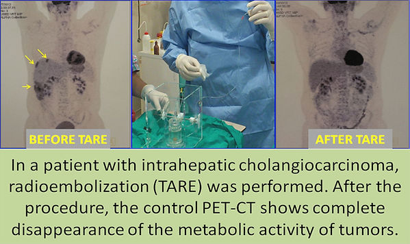 Radioembolization in intrahepatic cholangiocarcinoma.