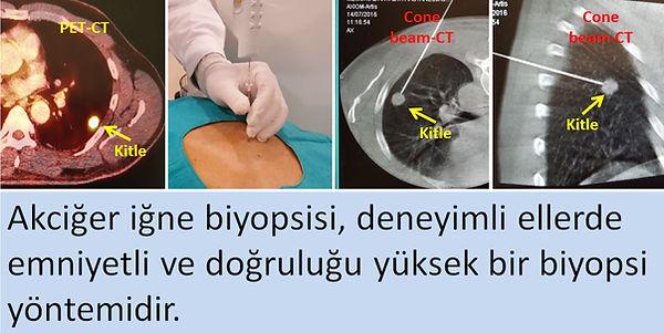 Tomografi rehberliğinde perkütan akciğer iğne biyopsisi.