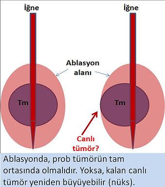 Ablasyonda iğne tümörün tam ortasında olmazsa nüks gelişebilir.
