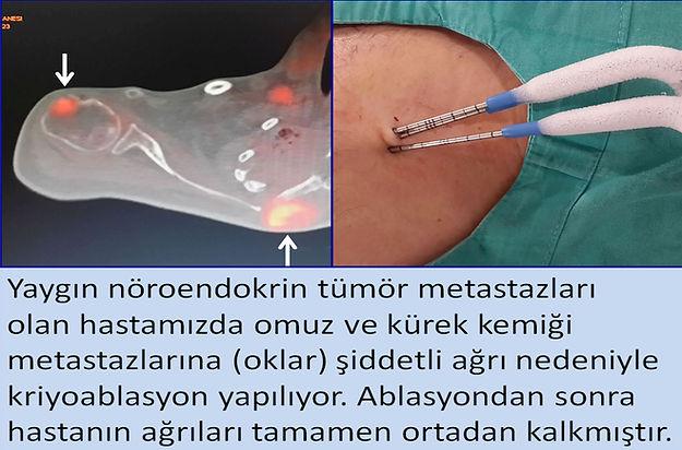 Kemik tümörlerinde kriyoablasyon ağrıyı gidermede son derece başarılıdır.