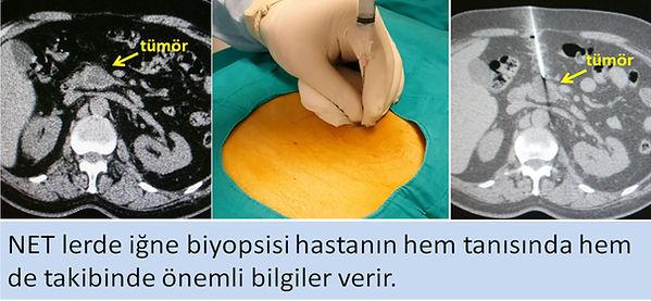 Nöroendokrin tümörlerde (NET) perkütan kesici iğne biyopsisi.