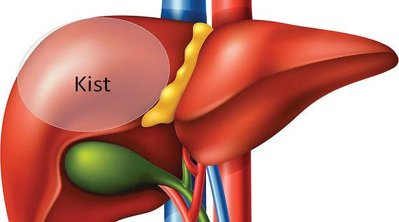 Basit kistler en sık karaciğer, böbrek, yumurtalık ve memede bulunur.