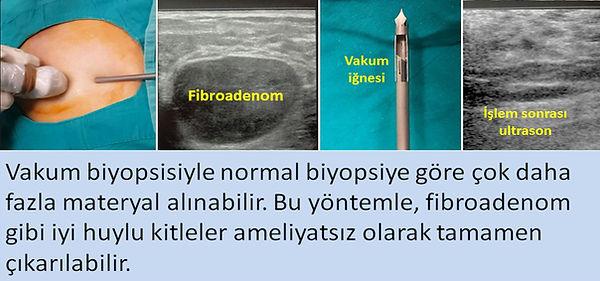 Vakum biyopsisi meme kitlelerinin hem tanısında hem de bazen tedavisinde kullanılabilir.