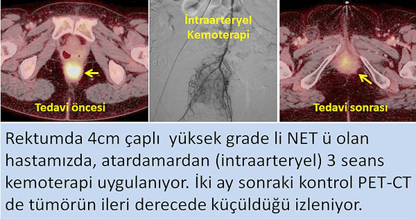 Rektum Nöroendokrin tümörlerde (NET) intraarteryel kemoterapi.