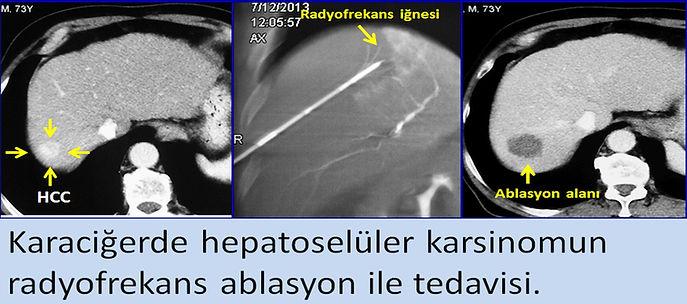 Karaciğerde HCC nin radyofrekans ablasyon ile tedavisi
