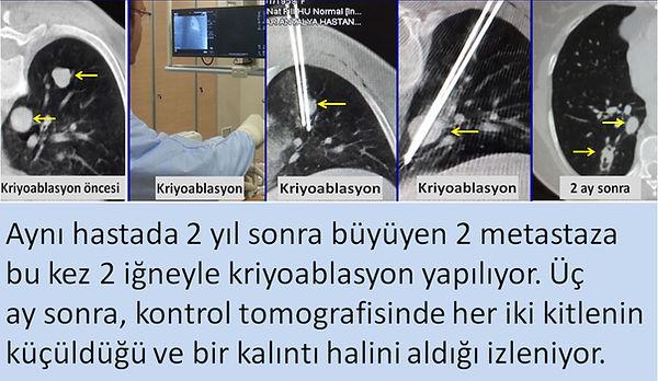 Akciğer tükrük bezi kanseri metastazlarına kombine kriyoablasyon.