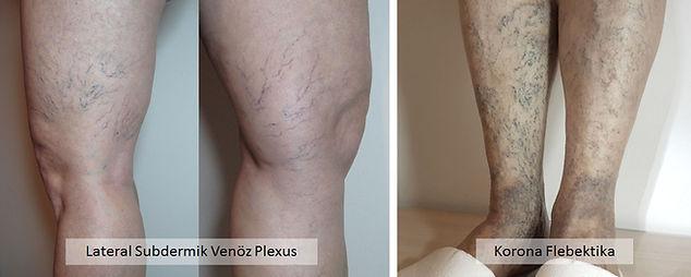 Kılcal varisler en sık lateral subdermik venöz plexus ve korona flebektika şeklinde görülürler.