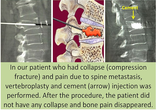 Pain palliation with vertebroplasty in spine metastases.