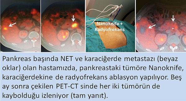 Nanoknife ablasyon, pankreastaki nöroendokrin tümörlerde başarılı bir tedavi seçenğidir.