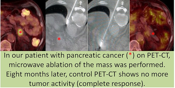 Complete response after microwave abltion of a pancreatic mass.