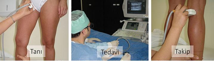 Variste tanı, tedavi ve takip ultrasonu iyi bilen tek bir hekim tarafından yapılmalıdır.