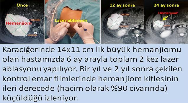 Dev karaciğer hemanjiomunn lazer ablasyon öntemiyle tedavisi.