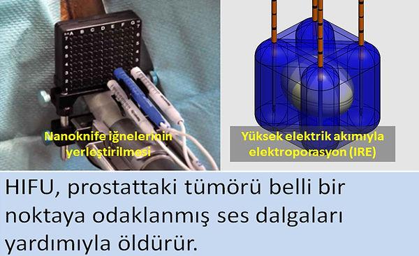 Prostat kanserinde Nanoknife (IRE) tedavisi.