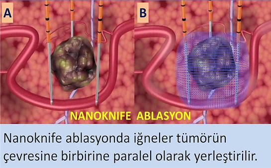 Nanoknife ablasyonda iğneler bibbirine paralel olarak tümör çevresine yerleştirilir.