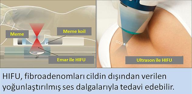 HIFU, fibroadenomları ses dalgalarıyla tedavi eder.