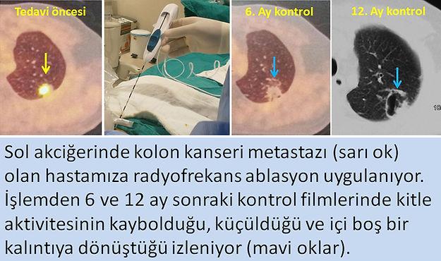 Kolon kanseri akciğer metastazında radyofrekans ablasyon (RFA).