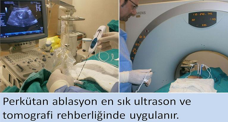 Perkütan ablasyon en sık ultrason ve tomografi rehberliğinde uygulanır.