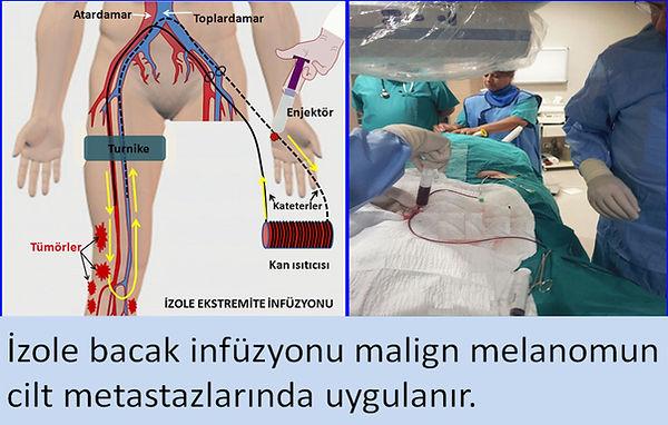 Malign melanomun cilt metastazlarında izole bacak infüzyon tedavisi.