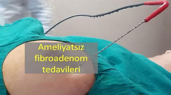 Meme fibroadenomlarında ameliyatsız tedaviler.