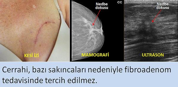 Cerrahi, bazı sakıncaları nedeniyle fibroadenomlarda tercih edilmez.