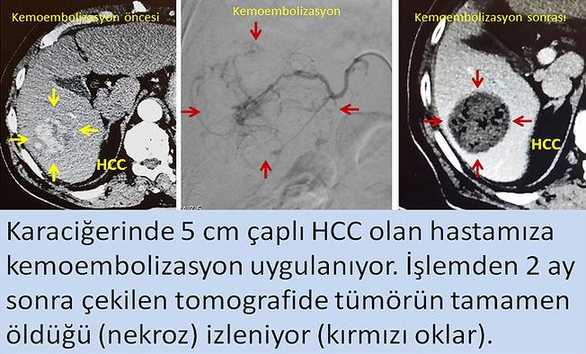 hepatoselüler karsinomda HCC kemoembolizasyon TAKE ve tomografi kontrolü.