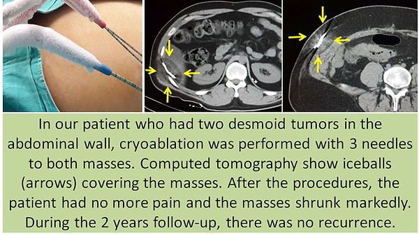 Cryoablation in the desmoid tumors of the abdominal wall.