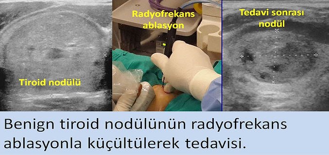 İyi huylu tiroid nodülleri radyofrekans ablasyonla kolayca tedavi edilebilirler.