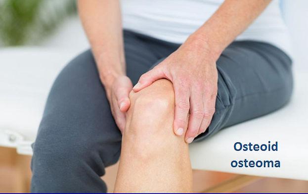 Osteoid osteoma da ameliyatsız tedavi mümkündür.