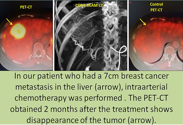 Intraarterial chemotherapy in a large liver metastasis of breast cancer.