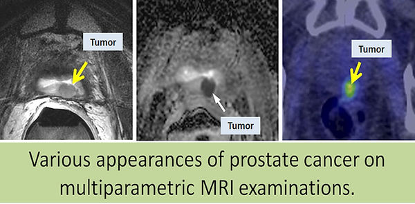 Value of multiparametric MRI in the detection of prostate cancer.
