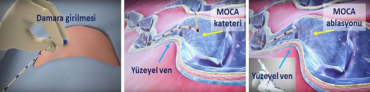 MOCA ablasyonunda, yetmezlikli damar mekanik ve kimyasal yollarla tahrip edilerek kapatılır.
