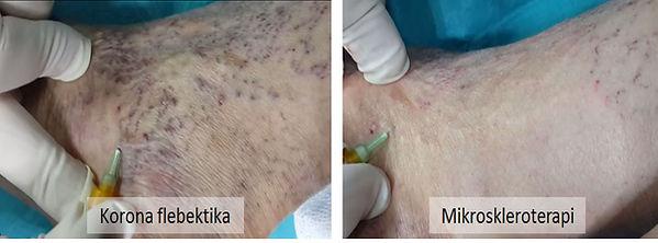 Korona flebektika, altta yatan venöz yetmezlik giderildikten sonra, mikroskleroterapi ile kolayca tedavi edilebilirler.