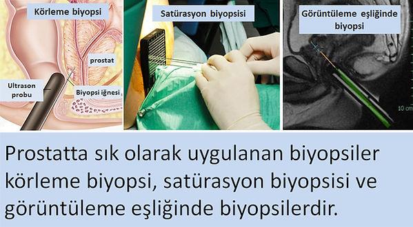 Ultrason ve füzyon ile prostat biyopsisi.