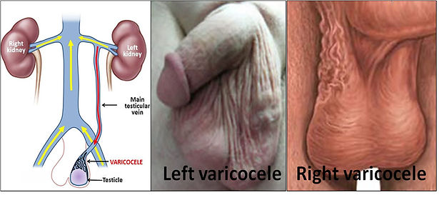 Varicocele is a group of varicoce veins that occur around the testicle.