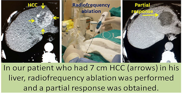 Combined radiofrquency ablation and chemoembolization in HCC.