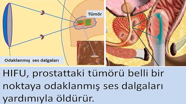 Prostat kanserinde Hayfu (HIFU) tedavisi.