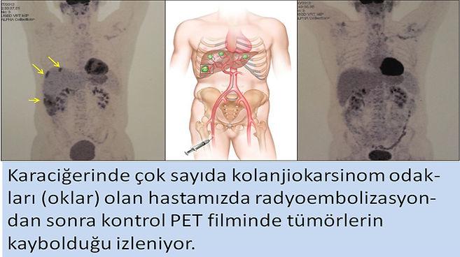 Kolanjiokarsinomda radyoembolizasyon, mikroküre tedavisi TARE.