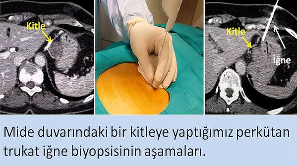 Mide duvarındaki kitlelere tomografi rehberliğinde trukat biyopsi uygulanabilir.