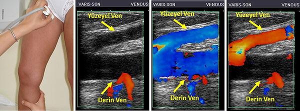 Renkli Doppler ultrason ile, kan akımının yönü incelenerek hangi damarlarda kaçak olduğu anlaşılabilir.