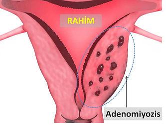 16 Adenomiyozis.jpg